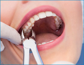tooth extraction Toronto