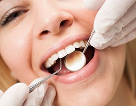 Particles-lodged-in-teeth-or-gums-north-york