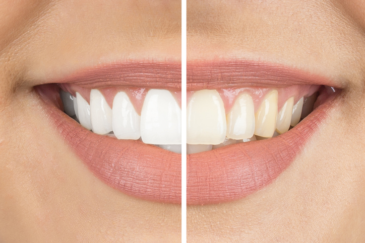 best-teeth-whitening