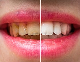 cosmetic-dentistry-complete-smile-makeover