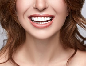 cosmetic-dentistry-natural-looking-fillers