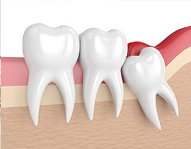 oral-surgeon-wisdon-tooth-removal