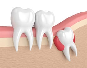 wisdom tooth extraction toronto