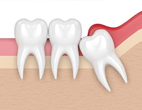 wisdom-tooth-removal-north-york