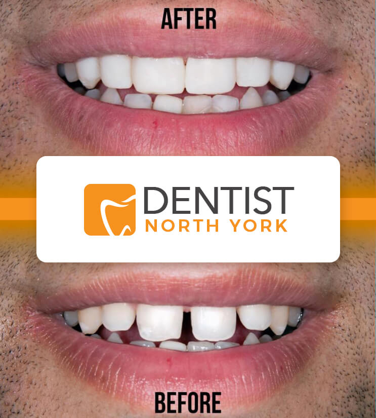 cosmetic dentist North York Ontario