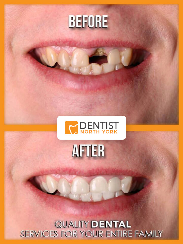 dental implants North York Ontario