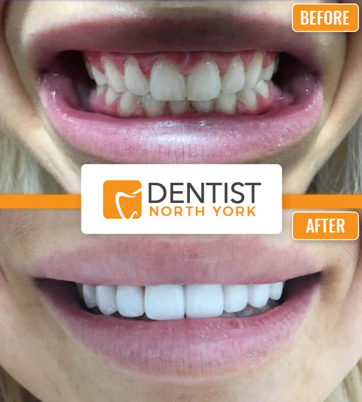 teeth cleaning North York Ontario