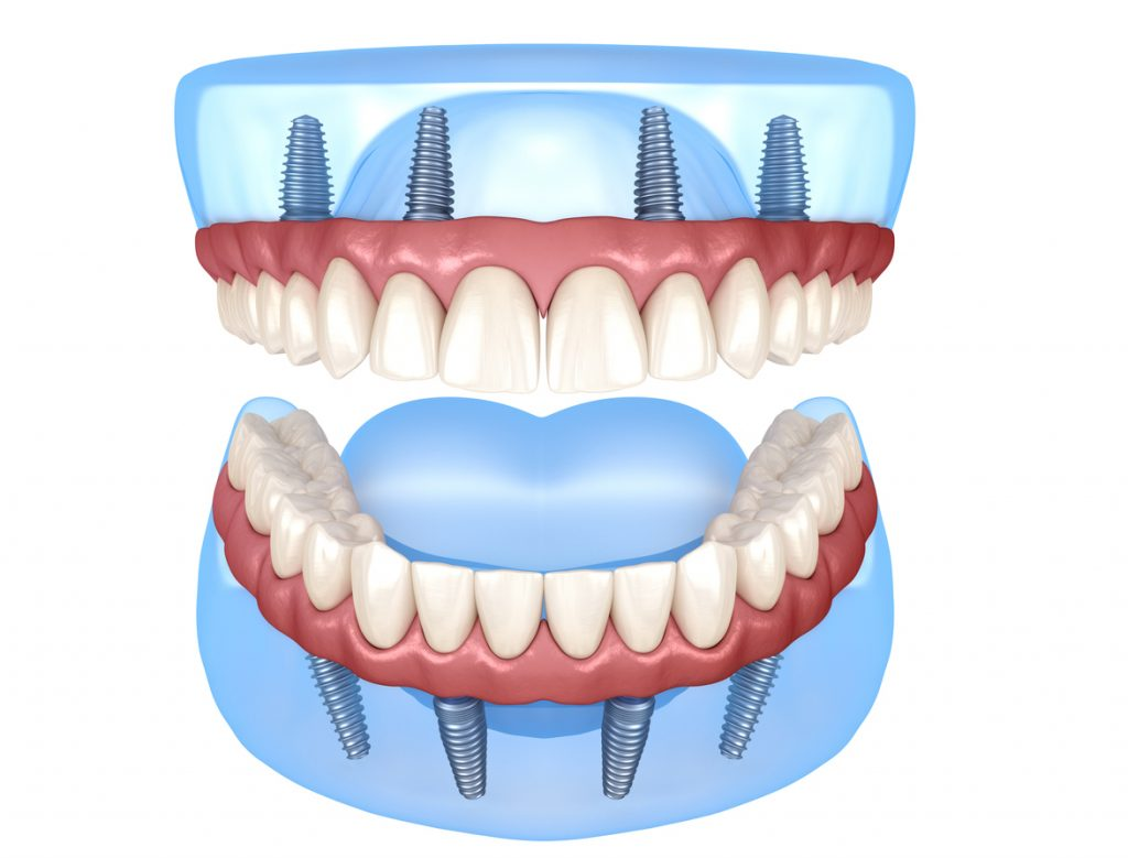 How to Clean All-On-4 Dental Implants