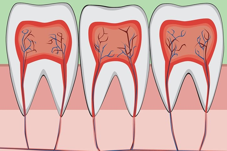 cutaway tooth showing nerves on gum